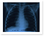 Research paper on tuberculosis